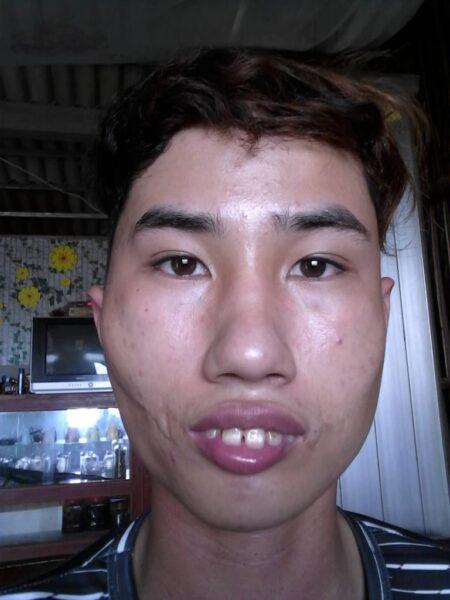 Hình ảnh trai xấu răng hô